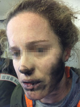 An Australian woman was injured after her headphones exploded mid-flight. (Image via ATSB)